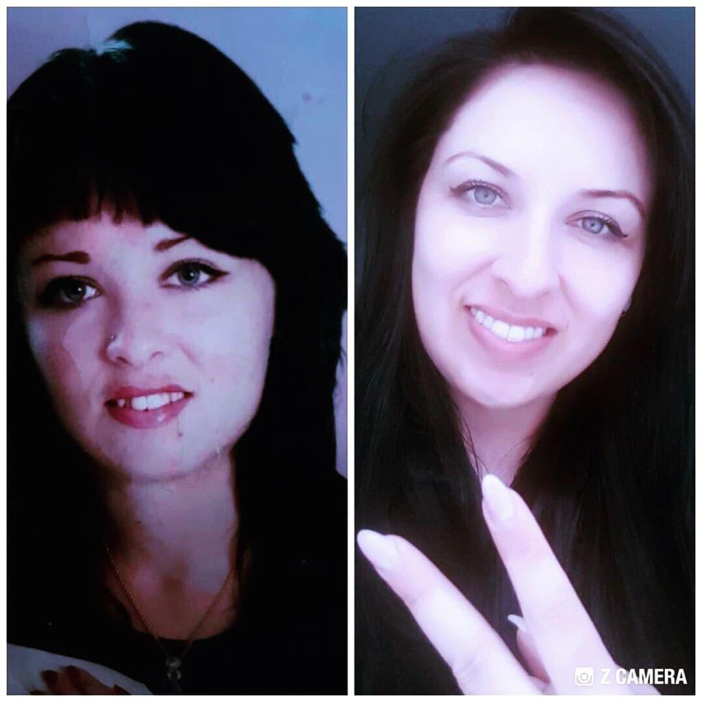 Zwei Bilder von Mädchen vor und nach der Zahnkorrektur mit Invisalign