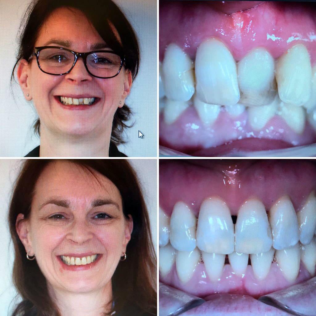 Bild von Frau mit Zähne vor und nach der Zahnkorrektur mit Invisalign