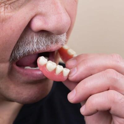 Was macht Zähne kaputt?
