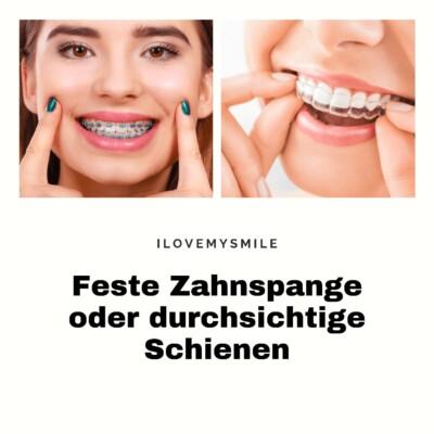 feste Zahnspange oder Schienen