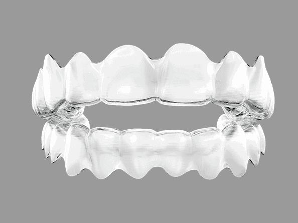 Invisalign durchsichtige Zahnspange oben und unten