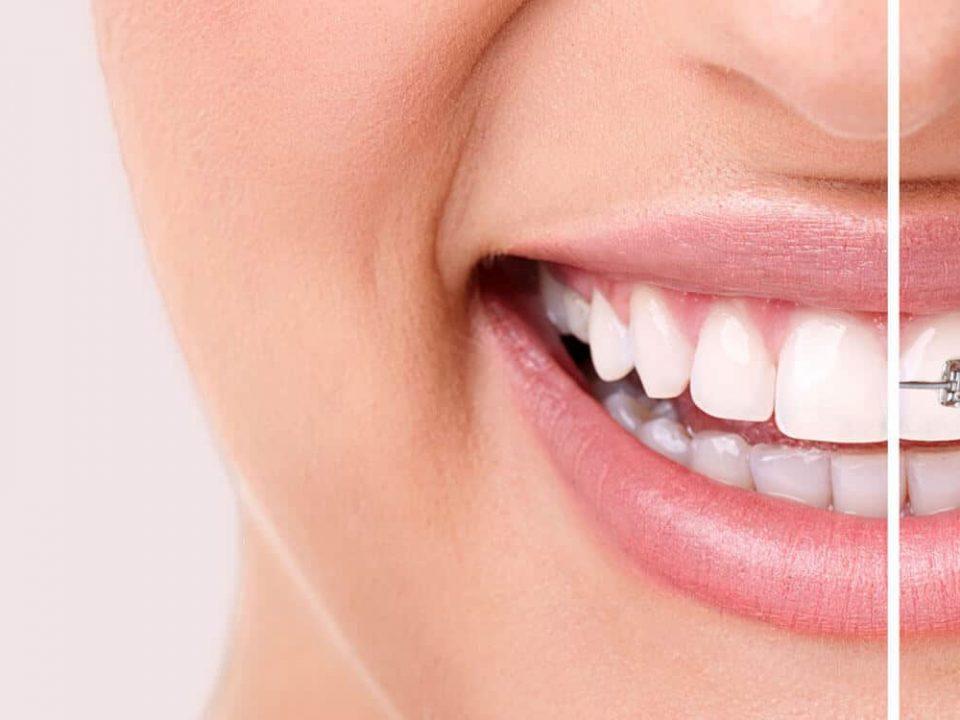 Zahnfehlstellungen, die Invisalign® korrigieren kann