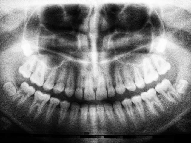 OMG… was passiert da im Internet? Hilfe… meine Zähne verschieben sich nicht richtig!